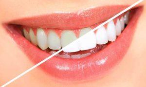 Фторирование-зубов